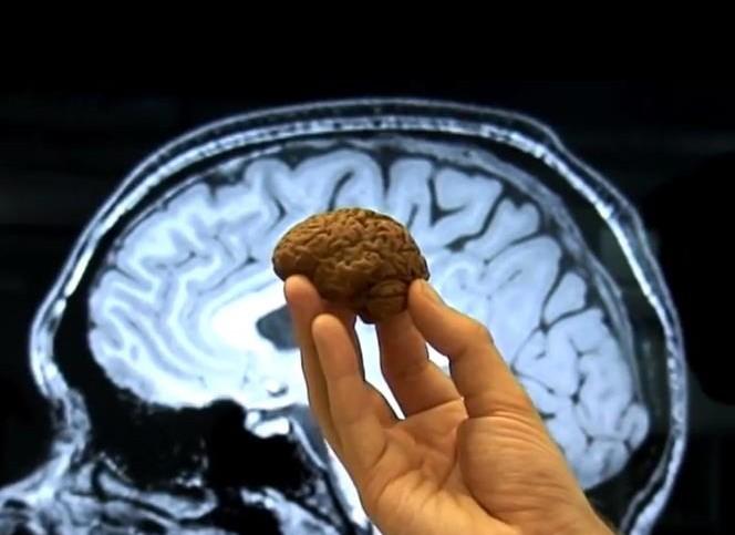 Cerveau imprimé en 3D à partir d'un IRM
