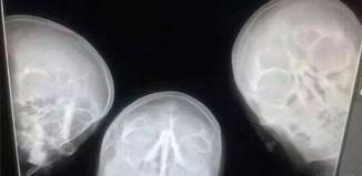 Le selfie des radiologues