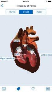 HeartPedia 1