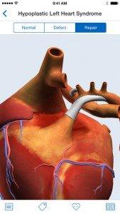 HeartPedia 2